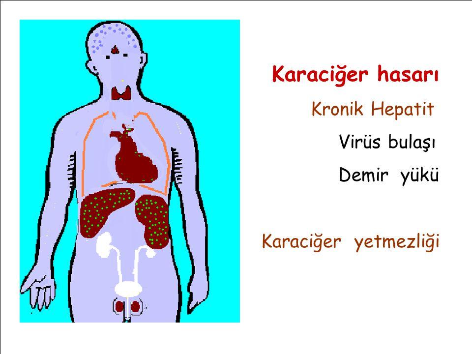 Karaciğer hasarı Kronik Hepatit Virüs bulaşı Demir yükü