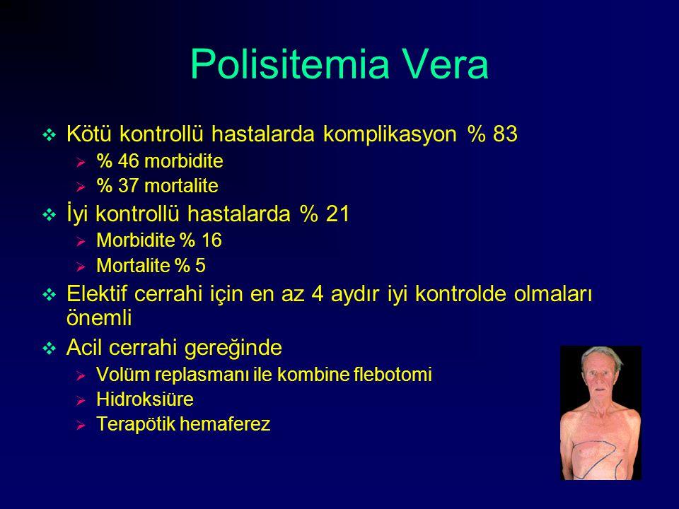 Polisitemia Vera Kötü kontrollü hastalarda komplikasyon % 83