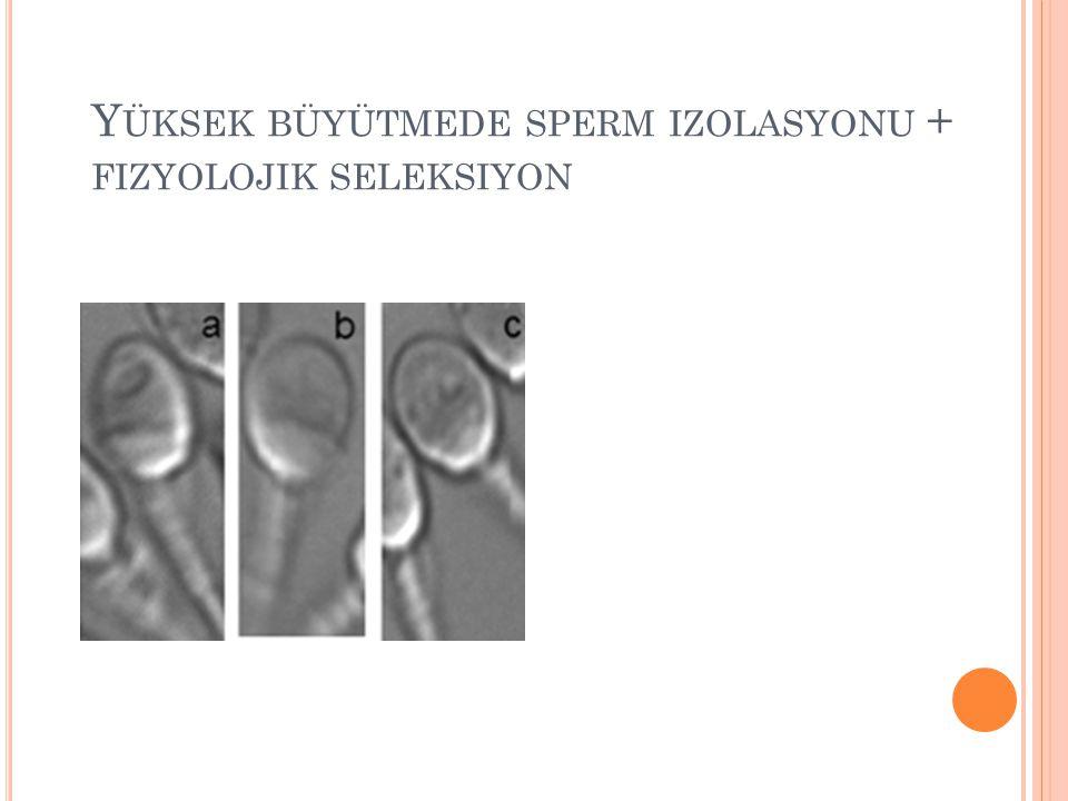 Yüksek büyütmede sperm izolasyonu + fizyolojik seleksiyon
