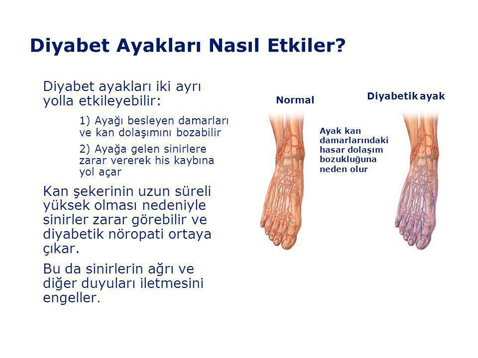 Diyabet Ayakları Nasıl Etkiler