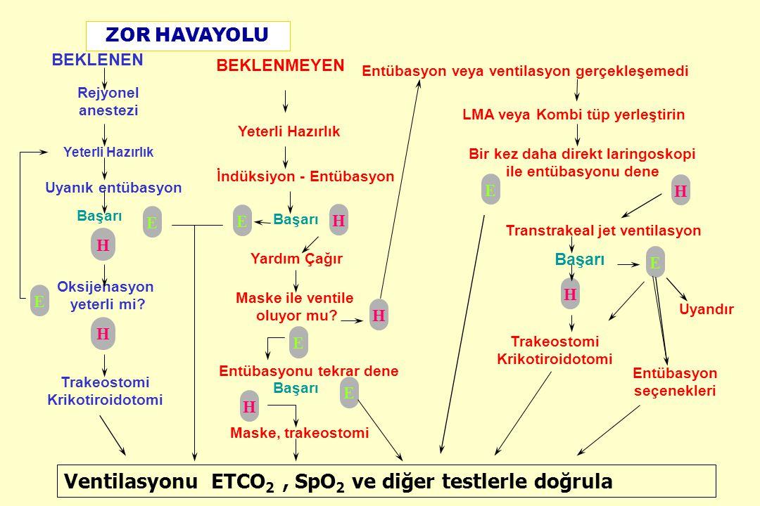 Ventilasyonu ETCO2 , SpO2 ve diğer testlerle doğrula