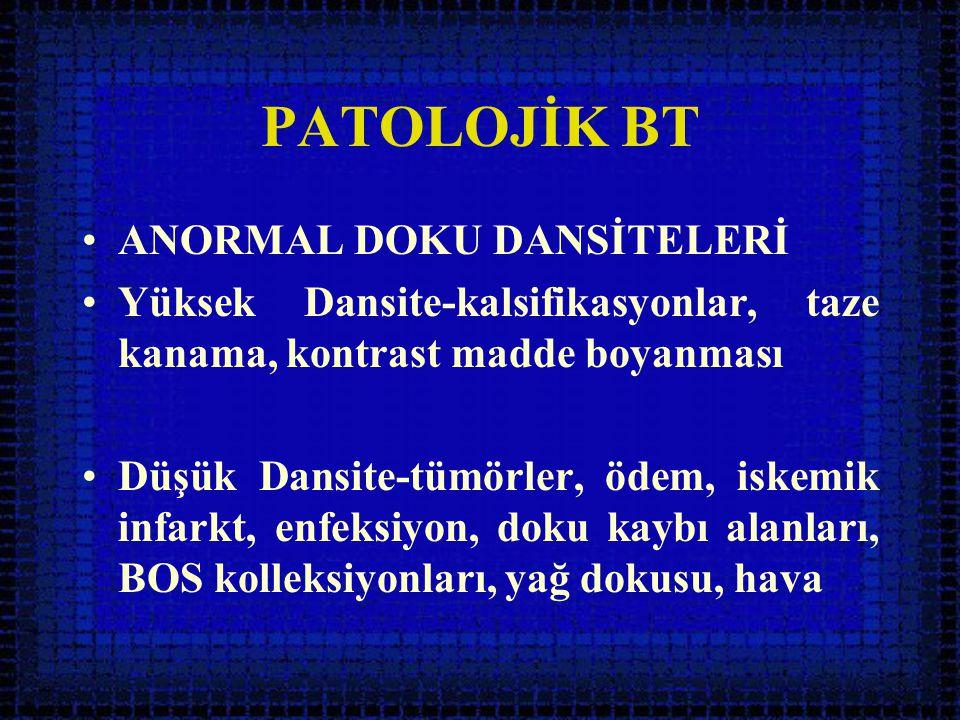 PATOLOJİK BT ANORMAL DOKU DANSİTELERİ