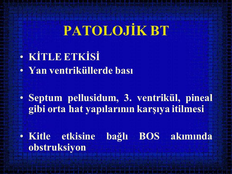 PATOLOJİK BT KİTLE ETKİSİ Yan ventriküllerde bası