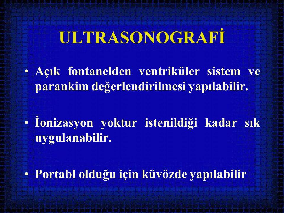 ULTRASONOGRAFİ Açık fontanelden ventriküler sistem ve parankim değerlendirilmesi yapılabilir. İonizasyon yoktur istenildiği kadar sık uygulanabilir.