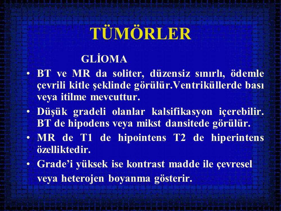 TÜMÖRLER GLİOMA. BT ve MR da soliter, düzensiz sınırlı, ödemle çevrili kitle şeklinde görülür.Ventriküllerde bası veya itilme mevcuttur.