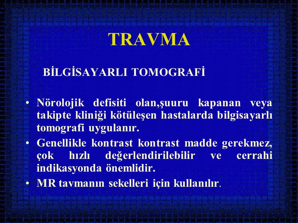 TRAVMA BİLGİSAYARLI TOMOGRAFİ
