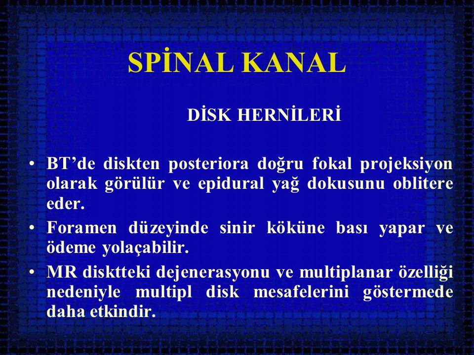 SPİNAL KANAL DİSK HERNİLERİ