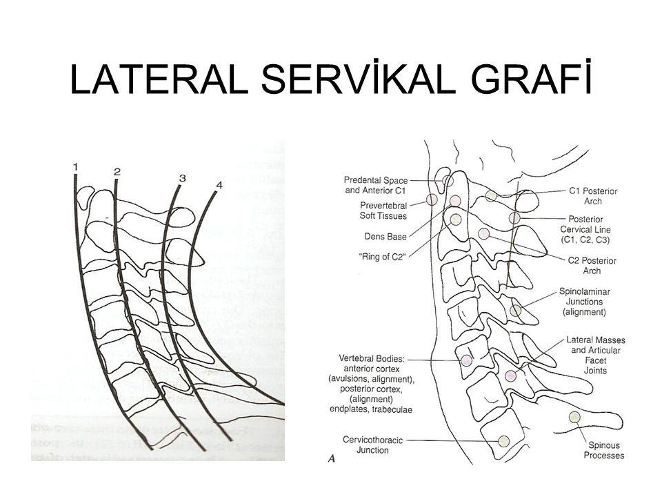 LATERAL SERVİKAL GRAFİ