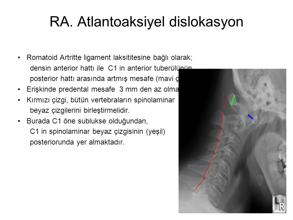 RA. Atlantoaksiyel dislokasyon
