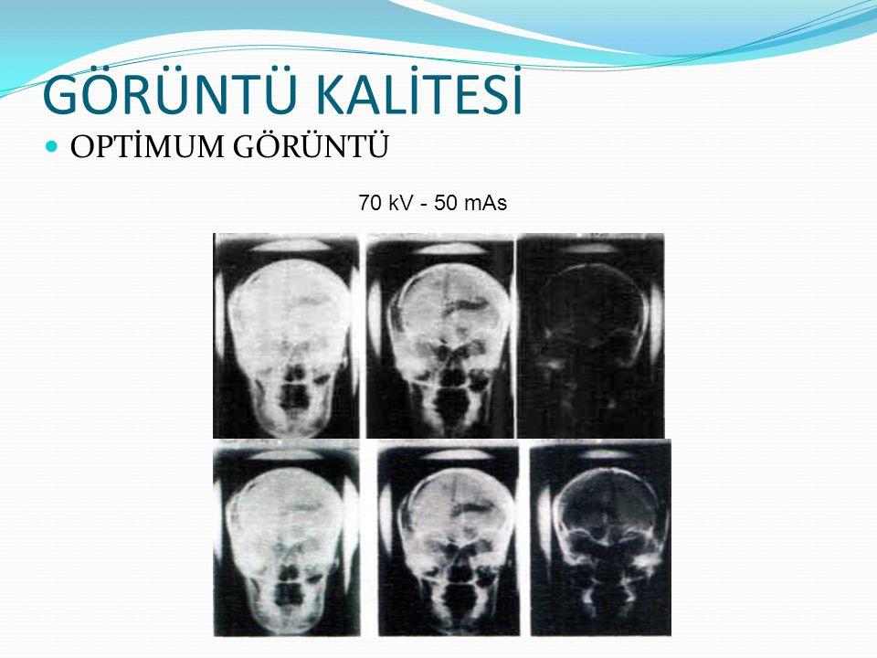 GÖRÜNTÜ KALİTESİ OPTİMUM GÖRÜNTÜ 70 kV - 50 mAs