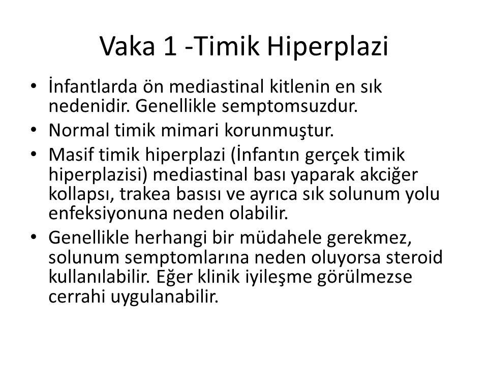 Vaka 1 -Timik Hiperplazi