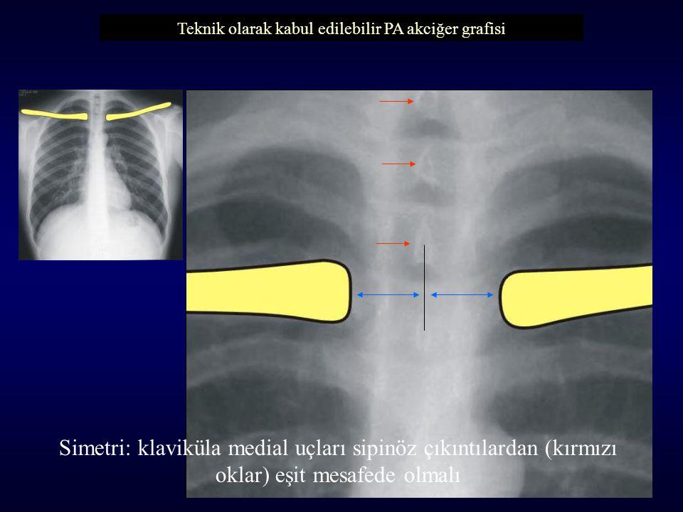 Teknik olarak kabul edilebilir PA akciğer grafisi