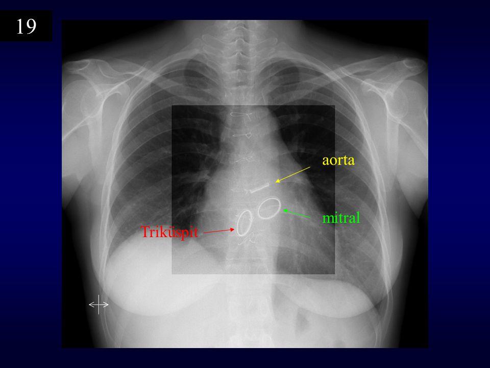 19 aorta mitral Triküspit