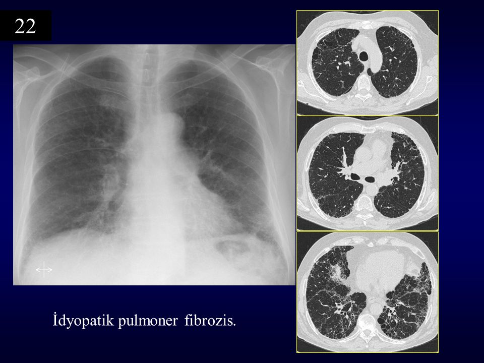 22 İdyopatik pulmoner fibrozis.