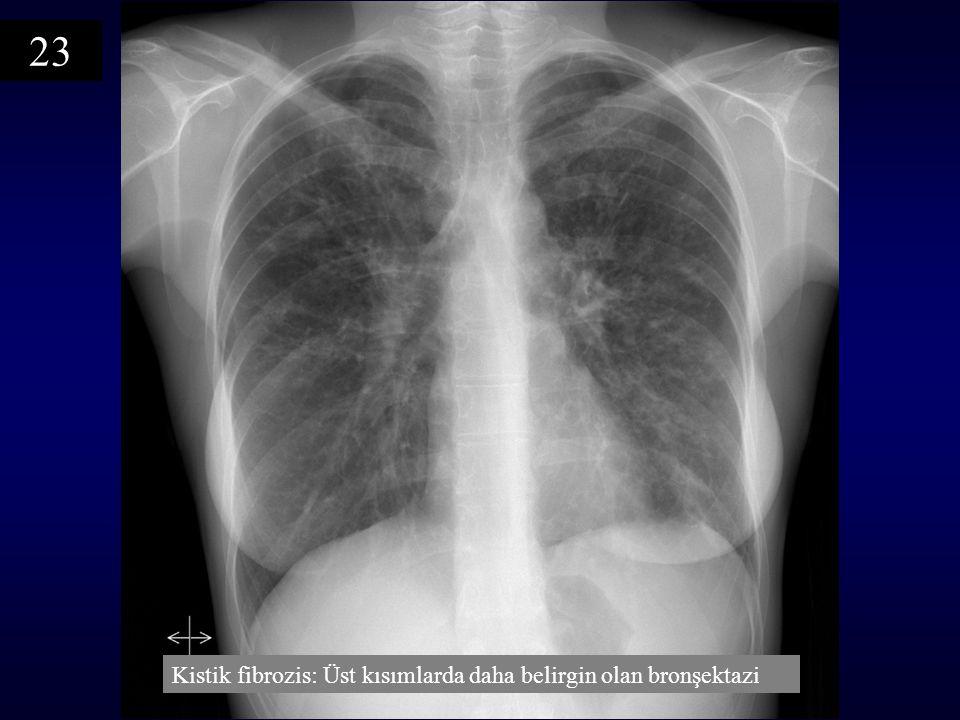 23 Kistik fibrozis: Üst kısımlarda daha belirgin olan bronşektazi