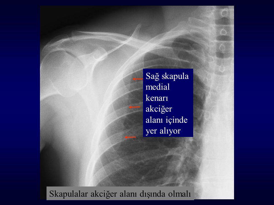 Sağ skapula medial kenarı akciğer alanı içinde yer alıyor