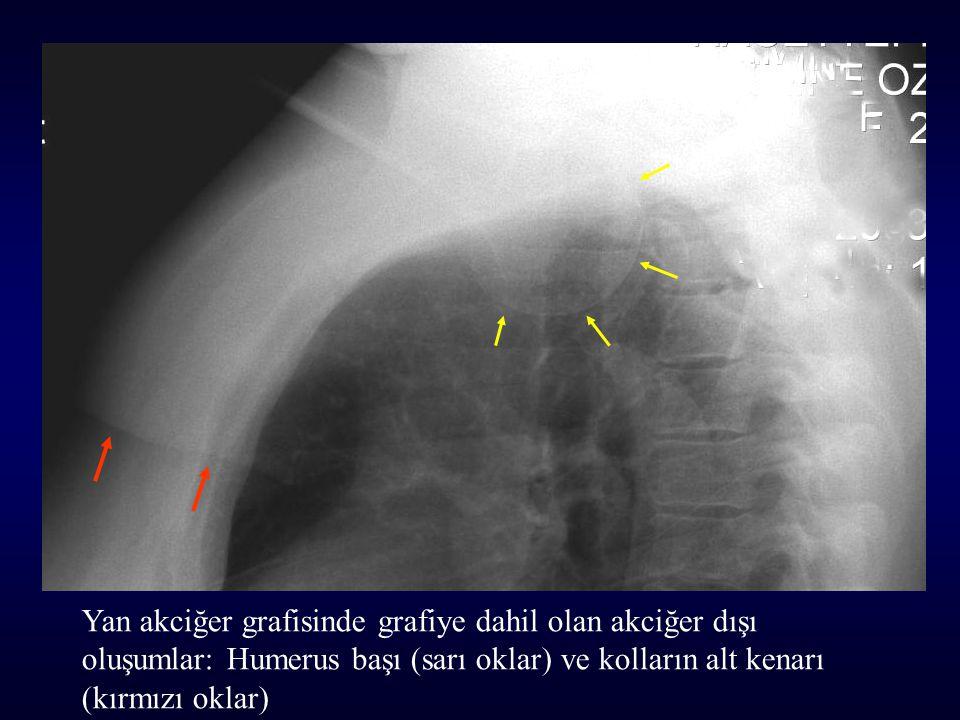 Yan akciğer grafisinde grafiye dahil olan akciğer dışı oluşumlar: Humerus başı (sarı oklar) ve kolların alt kenarı (kırmızı oklar)