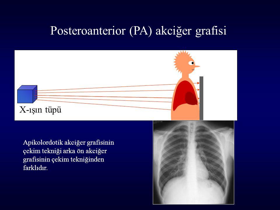 Posteroanterior (PA) akciğer grafisi
