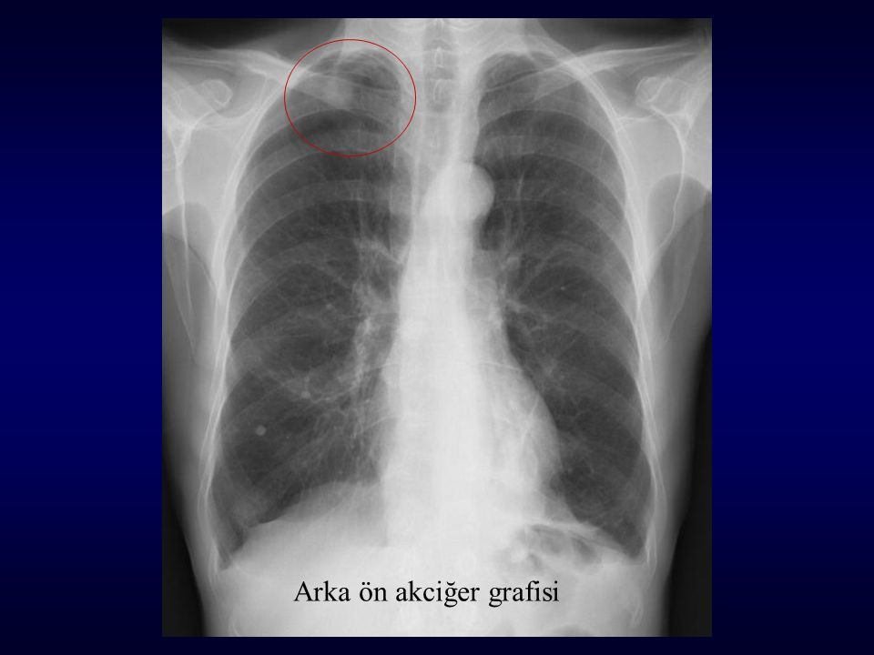 Arka ön akciğer grafisi