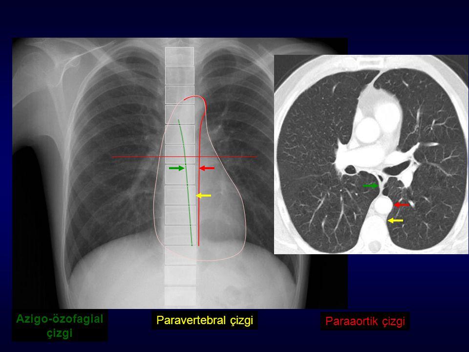Azigo-özofagial çizgi Paravertebral çizgi Paraaortik çizgi
