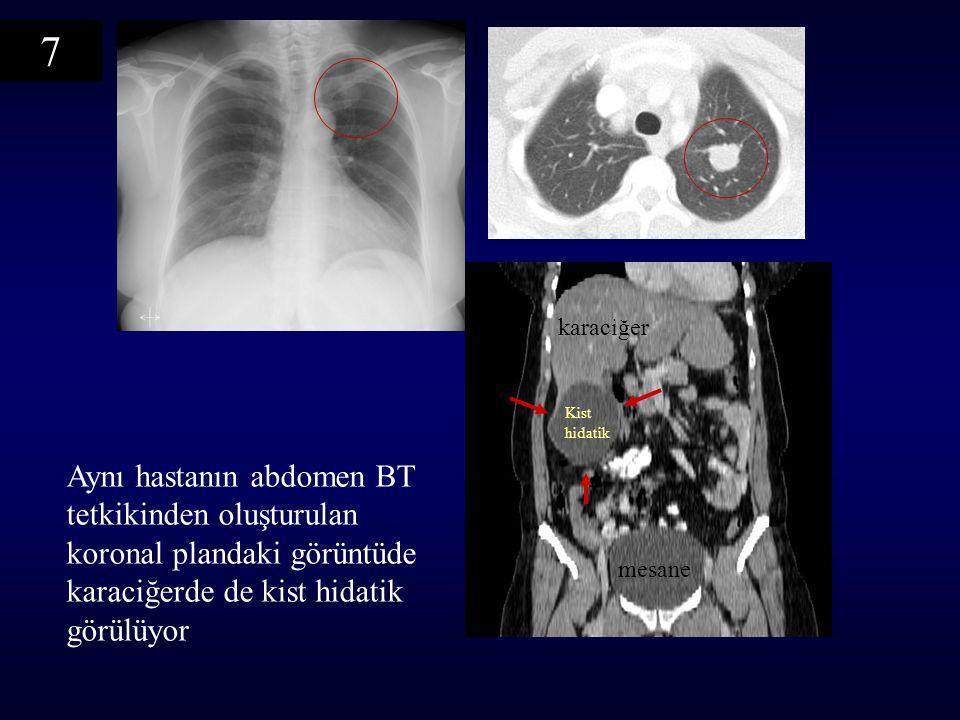7 karaciğer. Kist hidatik. Aynı hastanın abdomen BT tetkikinden oluşturulan koronal plandaki görüntüde karaciğerde de kist hidatik görülüyor.