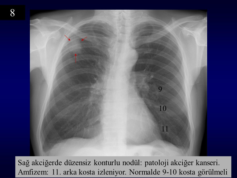 8 9. 10. 11. Sağ akciğerde düzensiz konturlu nodül: patoloji akciğer kanseri.