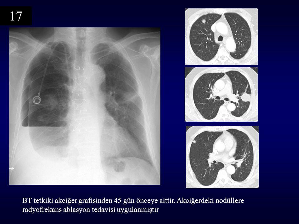 17 BT tetkiki akciğer grafisinden 45 gün önceye aittir.