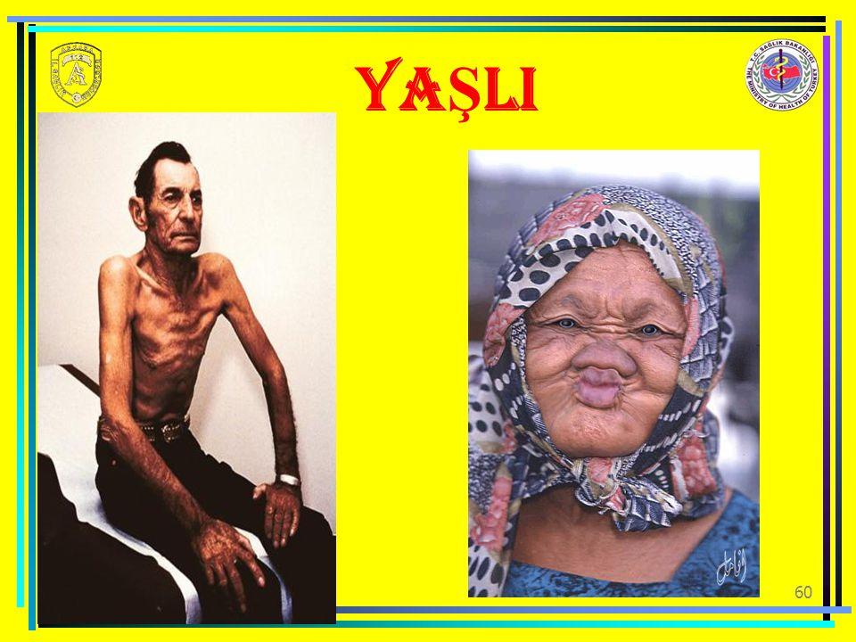 YAŞLI