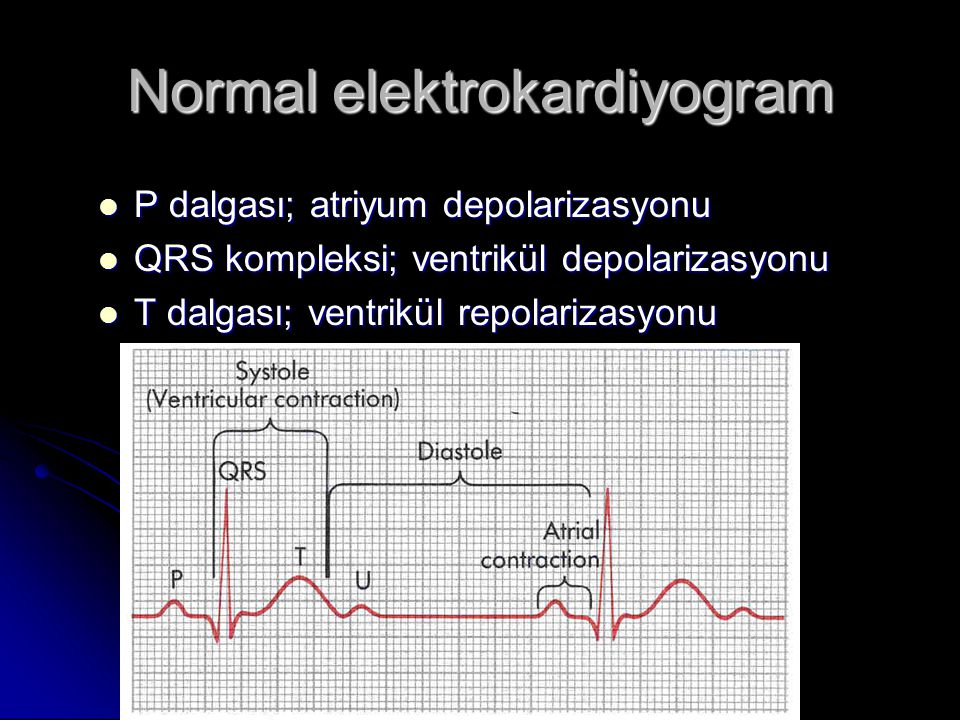 Normal elektrokardiyogram