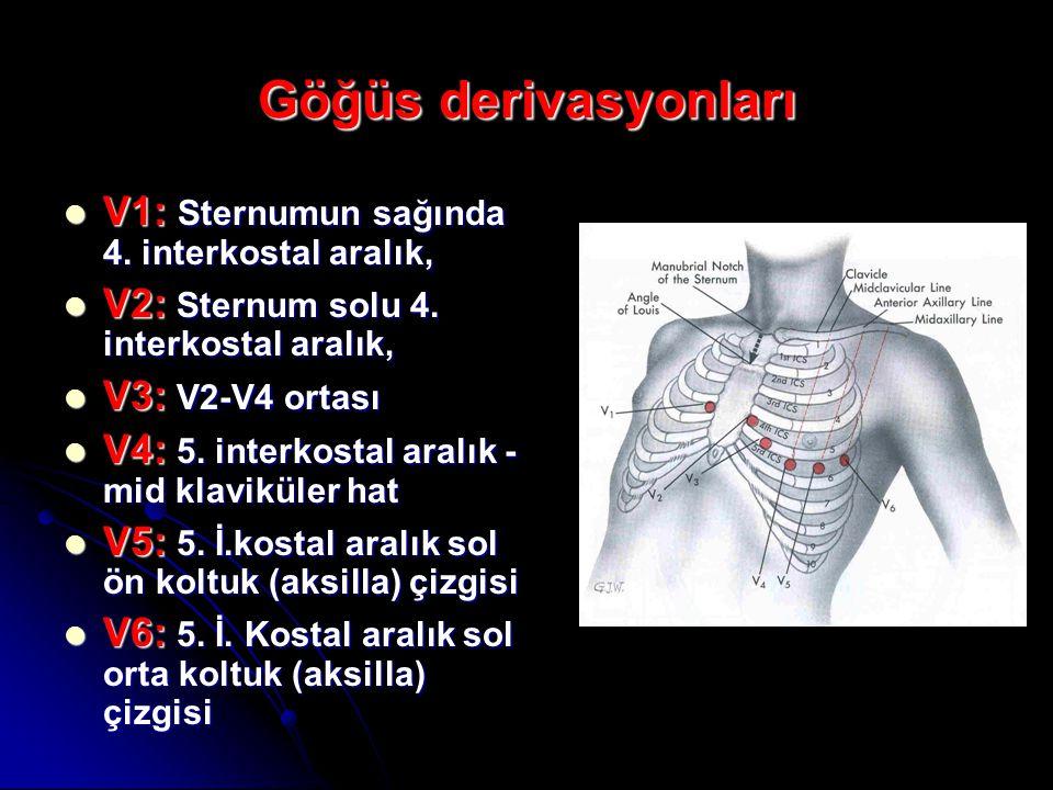 Göğüs derivasyonları V1: Sternumun sağında 4. interkostal aralık,