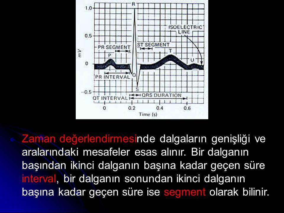 Zaman değerlendirmesinde dalgaların genişliği ve aralarındaki mesafeler esas alınır.