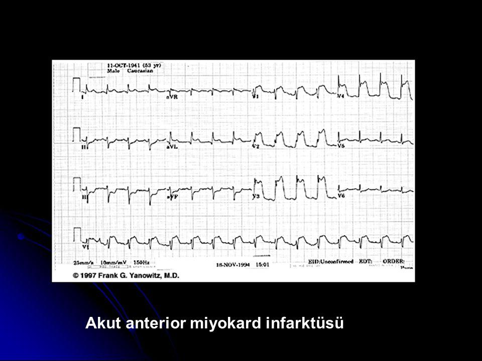 Akut anterior miyokard infarktüsü