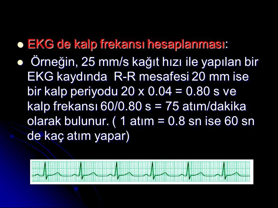 EKG de kalp frekansı hesaplanması: