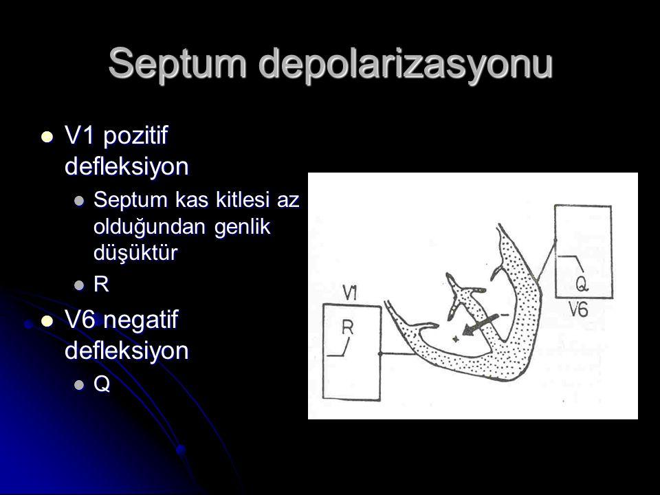 Septum depolarizasyonu