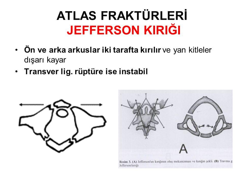 ATLAS FRAKTÜRLERİ JEFFERSON KIRIĞI
