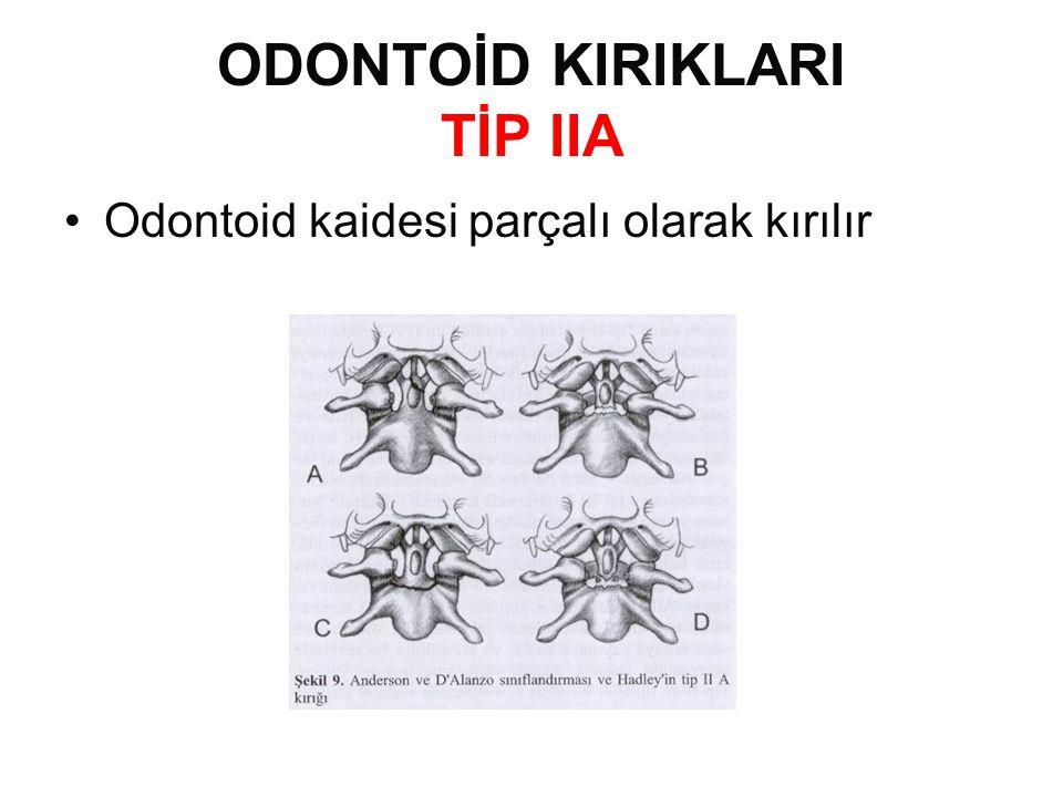 ODONTOİD KIRIKLARI TİP IIA