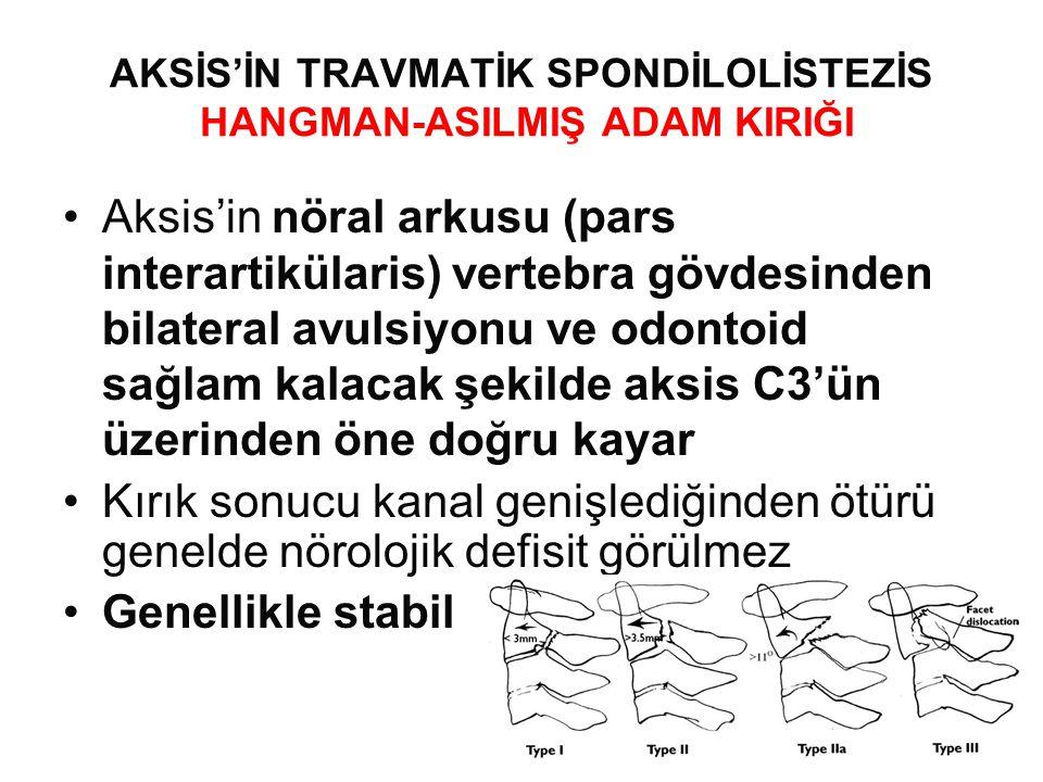 AKSİS'İN TRAVMATİK SPONDİLOLİSTEZİS HANGMAN-ASILMIŞ ADAM KIRIĞI