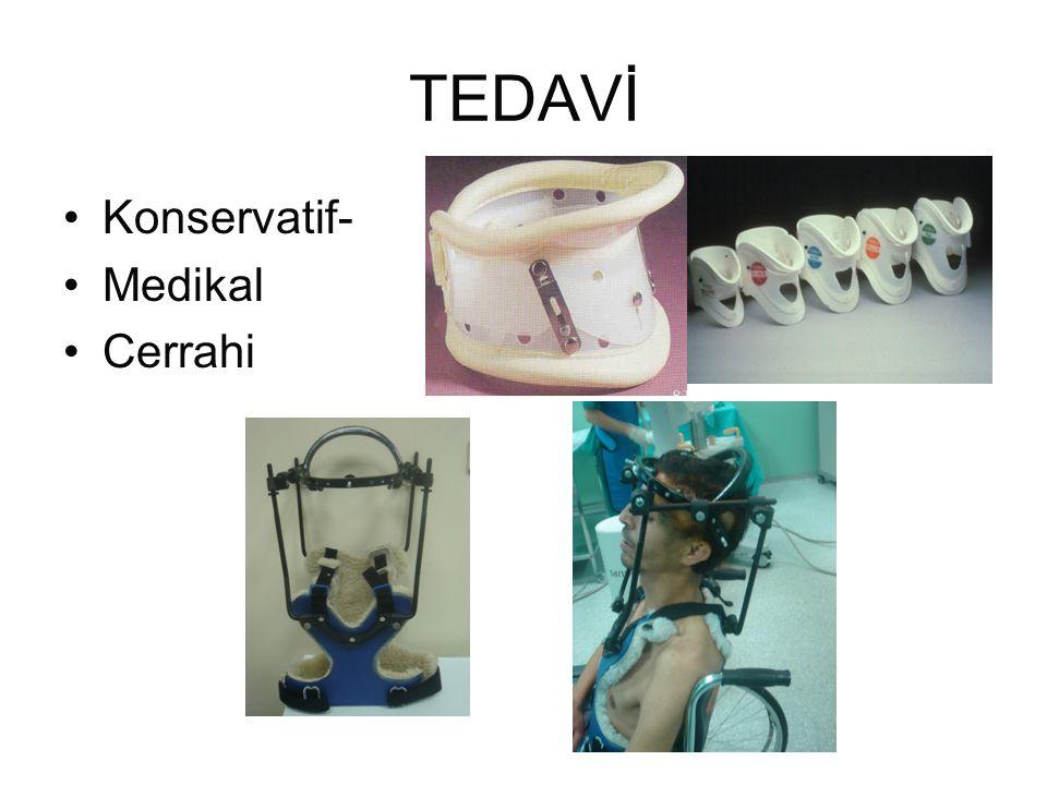 TEDAVİ Konservatif- Medikal Cerrahi
