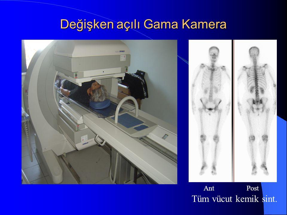 Değişken açılı Gama Kamera