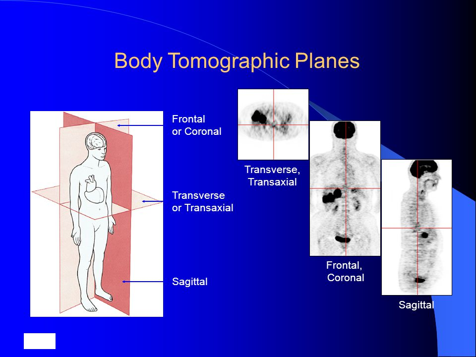 Body Tomographic Planes