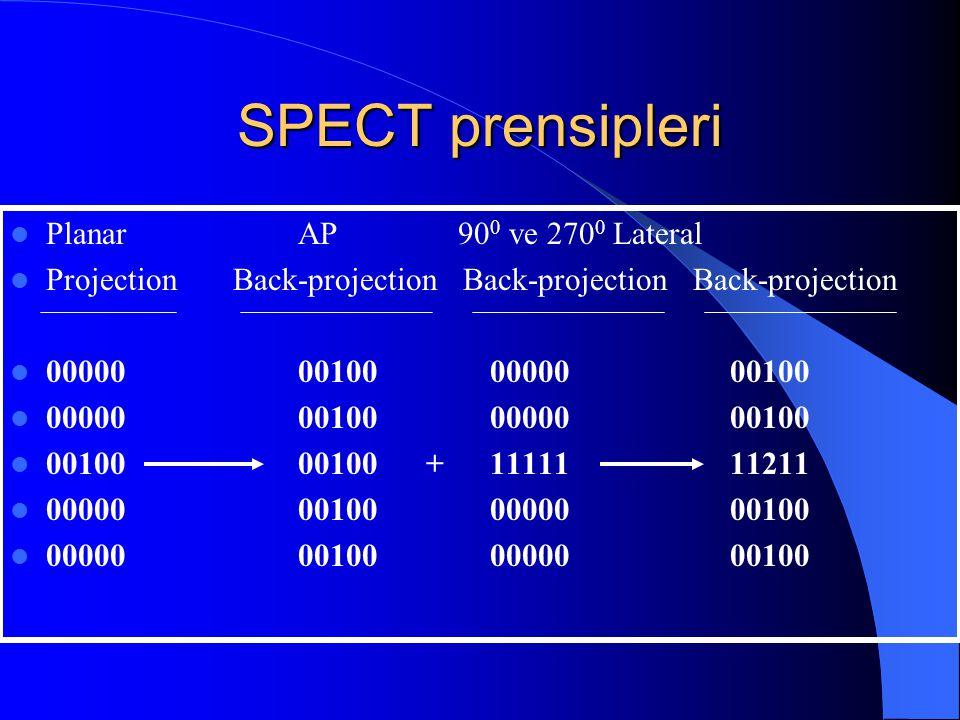 SPECT prensipleri Planar AP 900 ve 2700 Lateral
