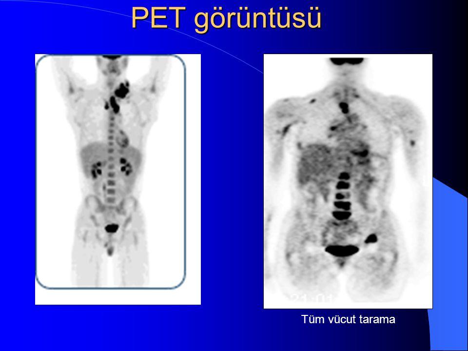 PET görüntüsü Tüm vücut tarama