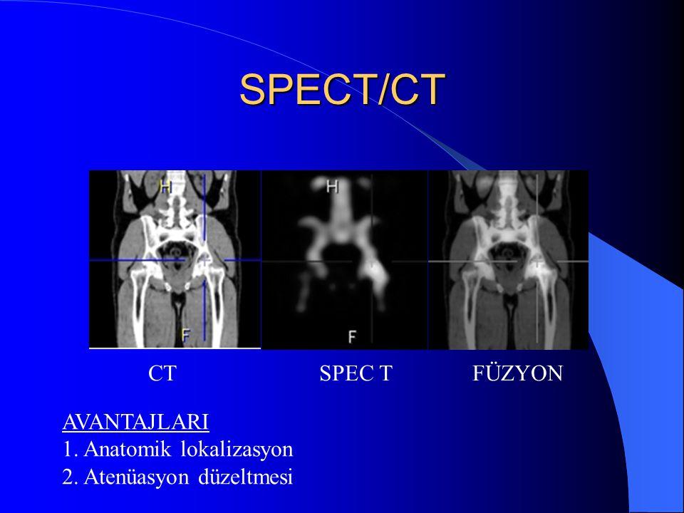 SPECT/CT CT SPEC T FÜZYON AVANTAJLARI 1. Anatomik lokalizasyon