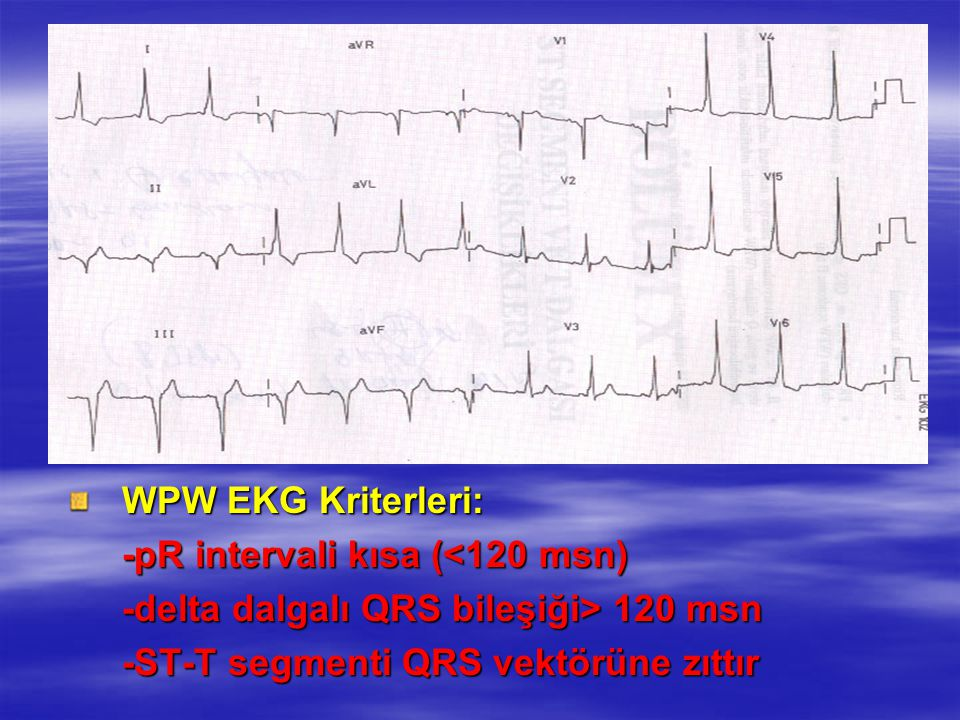 -pR intervali kısa (<120 msn)