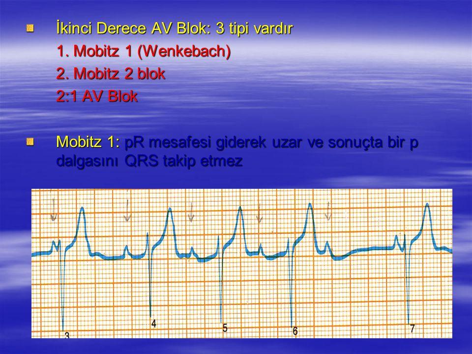 İkinci Derece AV Blok: 3 tipi vardır