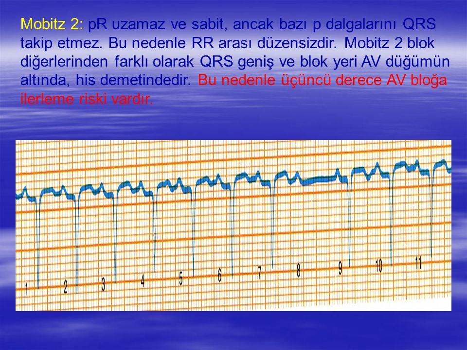 Mobitz 2: pR uzamaz ve sabit, ancak bazı p dalgalarını QRS takip etmez