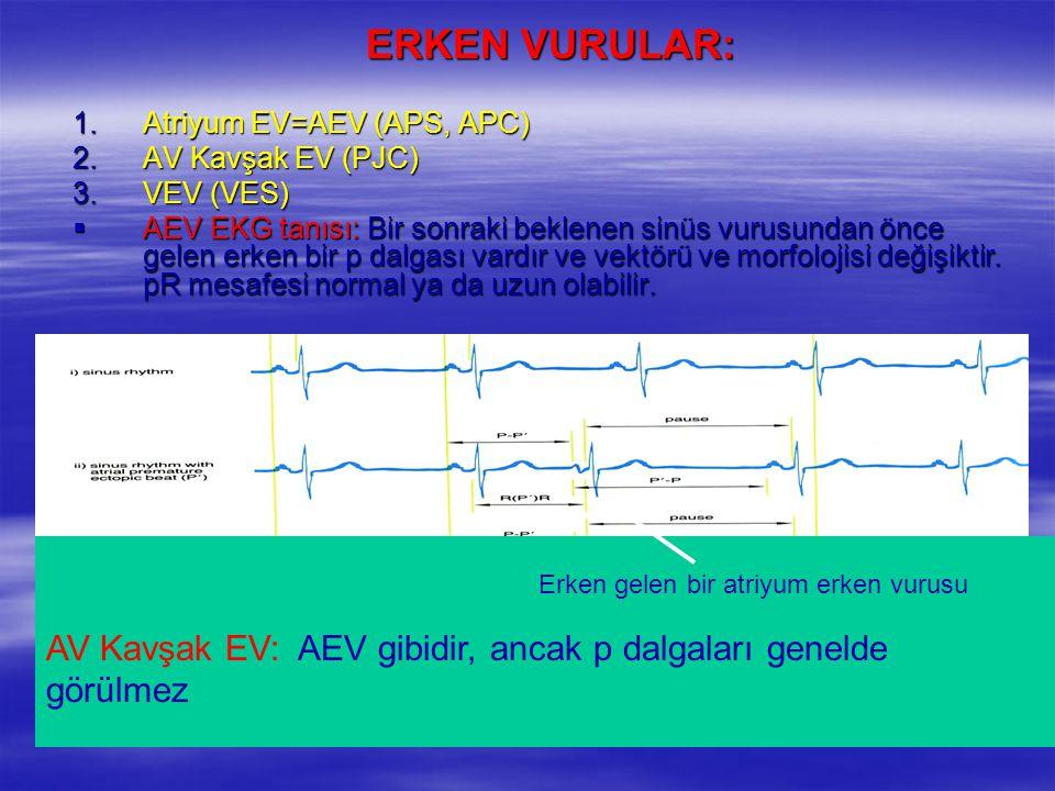 ERKEN VURULAR: Atriyum EV=AEV (APS, APC) AV Kavşak EV (PJC) VEV (VES)