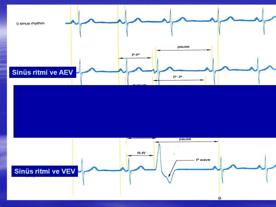 Sinüs ritmi ve AEV Sinüs ritmi ve VEV