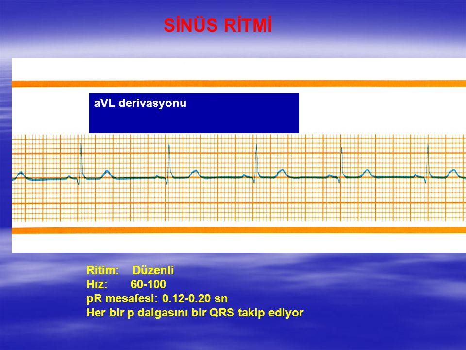 SİNÜS RİTMİ aVL derivasyonu Ritim: Düzenli Hız: 60-100