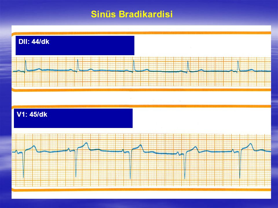 Sinüs Bradikardisi DII: 44/dk V1: 45/dk